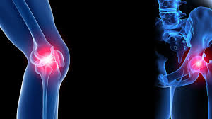 Fracture And Joint Orthopaedic Clinic