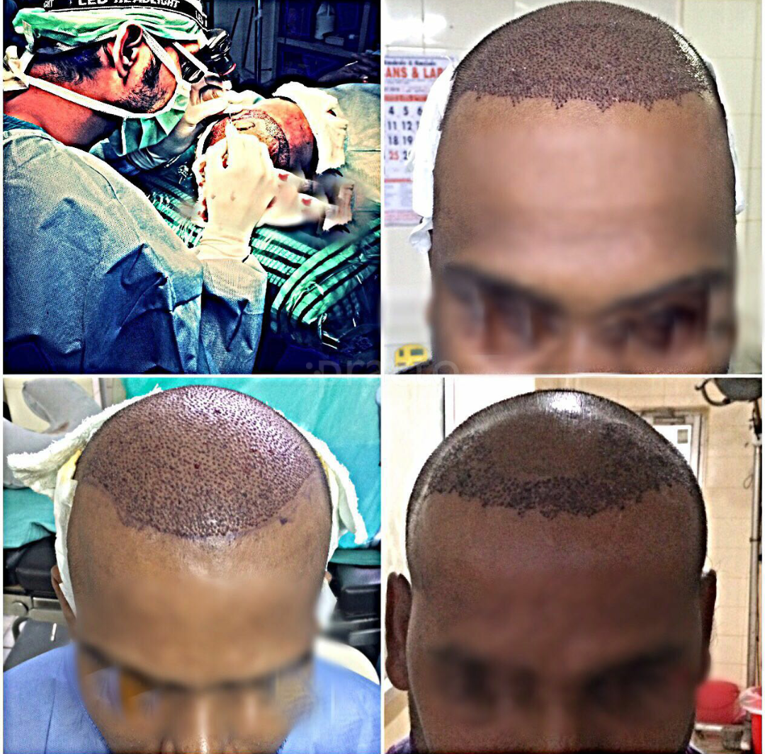 Advanced FUE Hairtransplant Centre, Multi-Speciality Clinic