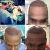 Advanced FUE Hairtransplant Centre - Image 2