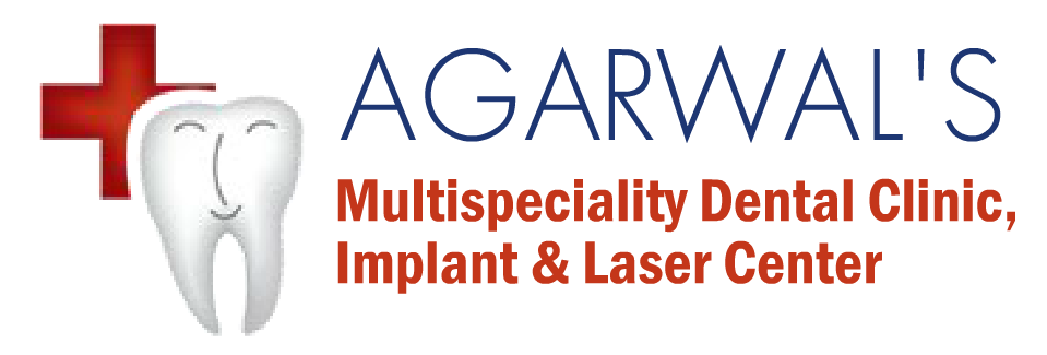 Agrawal's Multispeciality Dental Clinic, Orthodontic, Implant and Laser Center