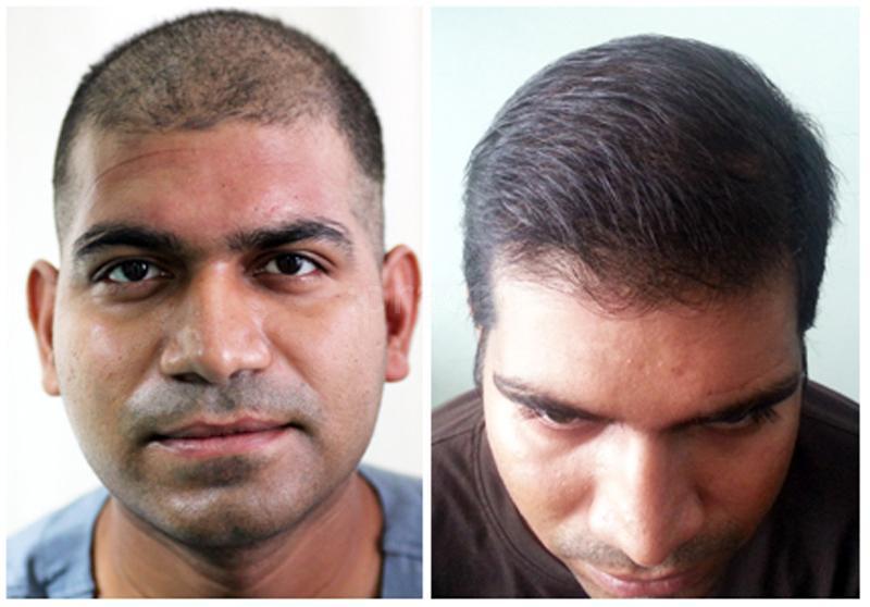 https://images1-fabric.practo.com/anagen-hair-transplant-mumbai-1475134509-57ecc42dc7f2e.jpg