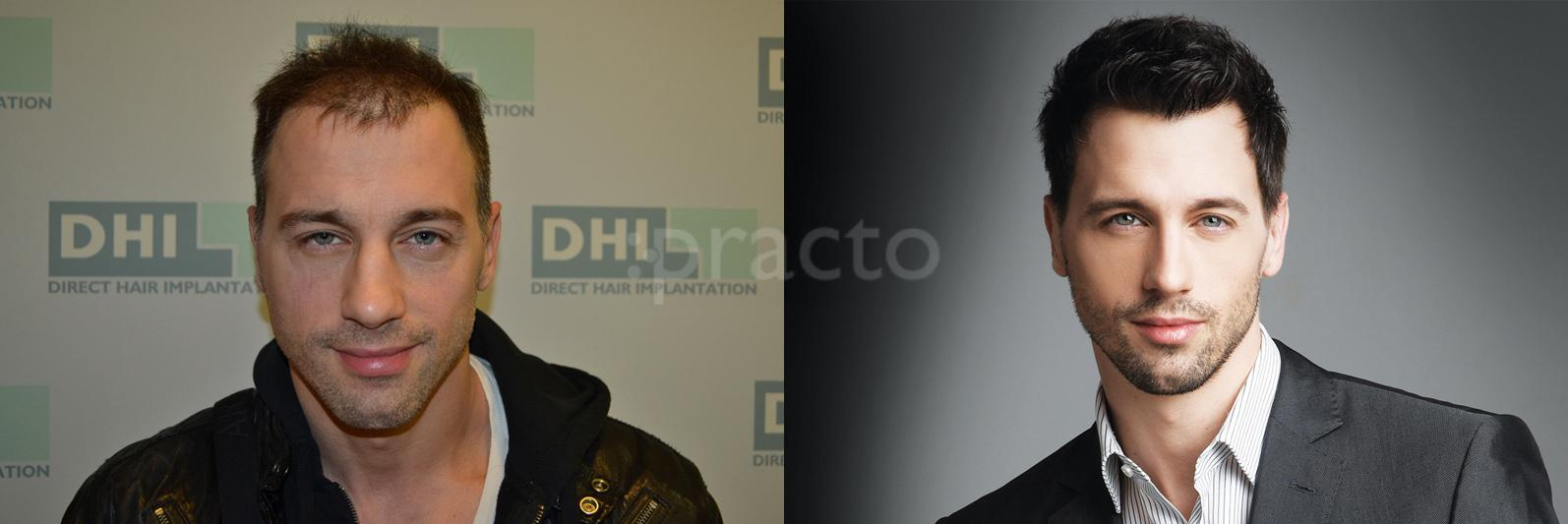 Dhi India, Hair Transplant Surgery and Cosmetic/Plastic Surgery ...