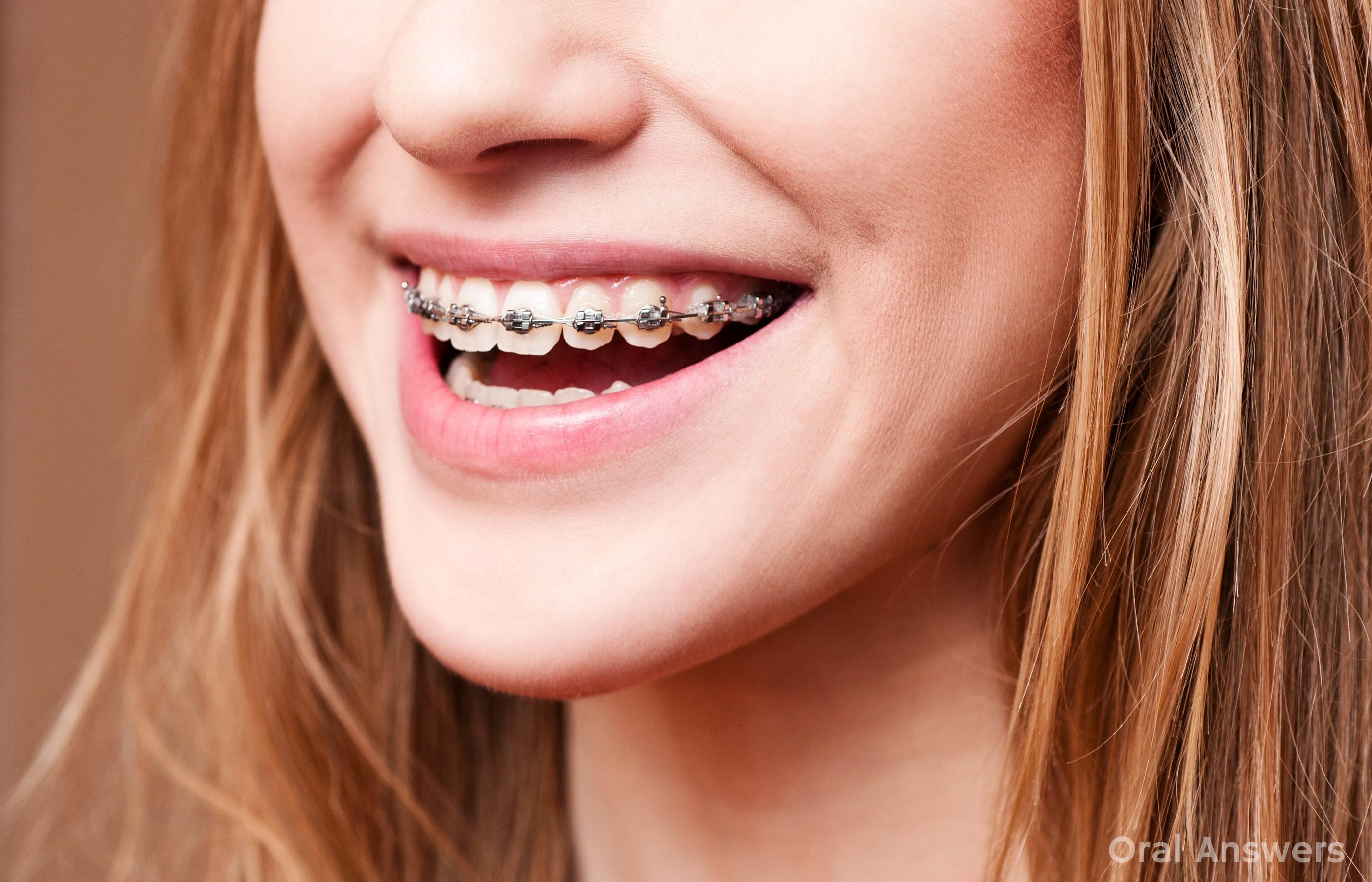 Myra Dental Clinic- Braces & Implant Centre