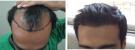 La Hair Care Clinic - Image 3