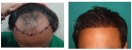 La Hair Care Clinic - Image 4