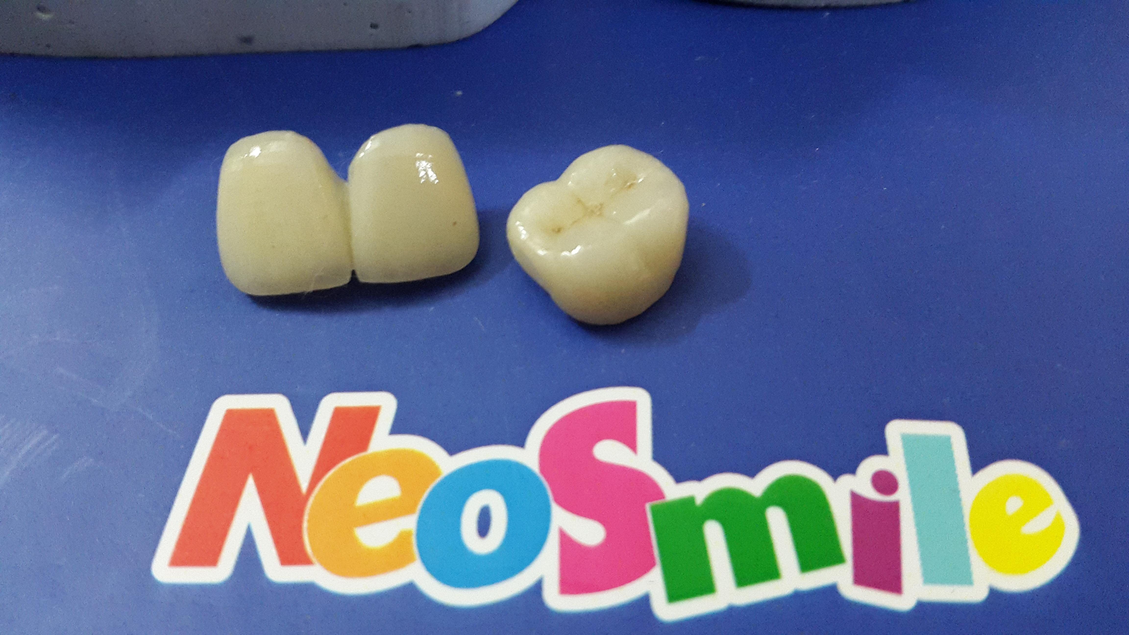 Neosmile Noida Centre for Dental Implants,Laser Dentistry & Invisible Orthodontics