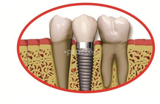 Maruti Dental Implant Center