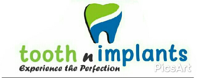 Tooth n Implants