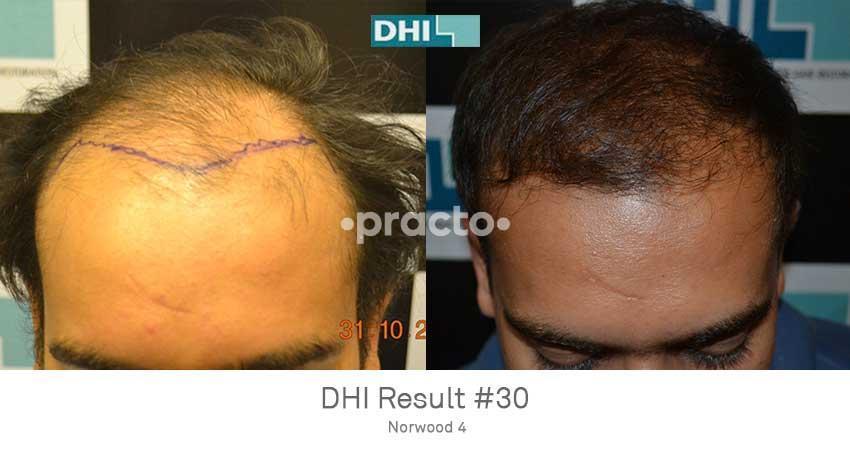 Hair Transplant In Hyderabad, Hair Transplant Cost, Find
