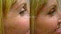 Desmoderm Skin & Laser Clinic - Image 23