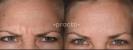 Desmoderm Skin & Laser Clinic - Image 24