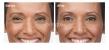 Desmoderm Skin & Laser Clinic - Image 25