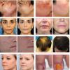 Advanced Skin and Hair Clinic