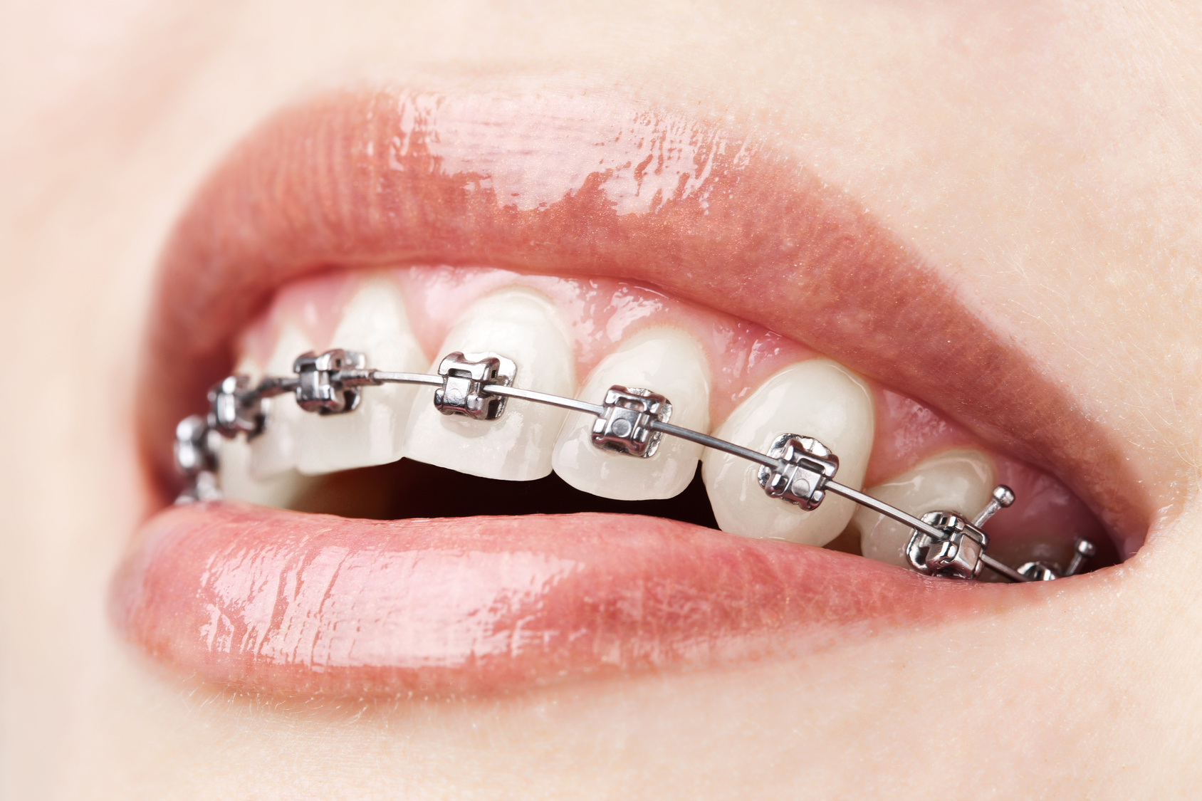 Suresmile Orthodontic & Multi-Speciality Dental Clinic