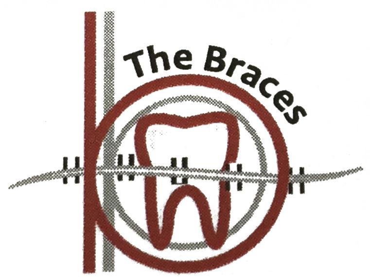 The Braces